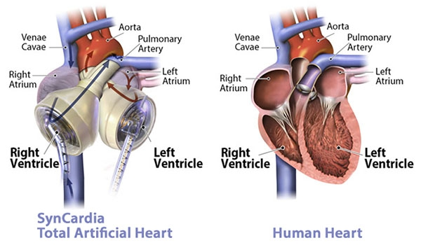 Us heart surgeons accept only 34 of available donor hearts for like a donor heart transplant the syncardia total artificial heart replaces the two diseased ventricles and four heart valves ccuart Choice Image